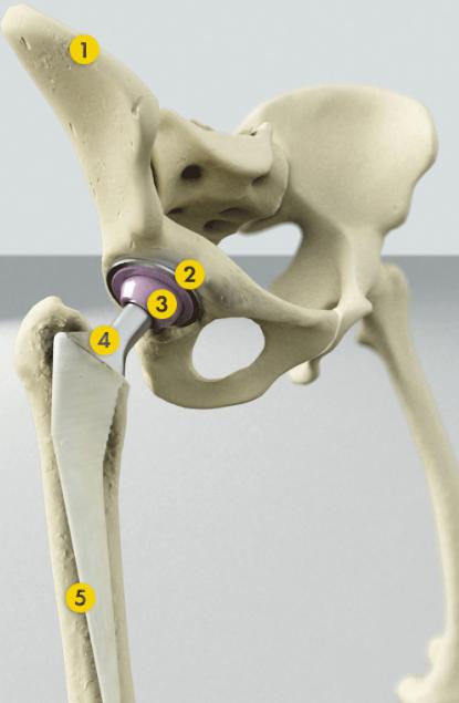 Эндопротезирование тазобедренного сустава стоимость екатеринбург протезирования коленного сустава массаж