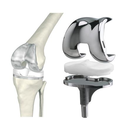 Цена замены коленного сустава в екатеринбурге чем отличается артрит от артроза тазобедренного сустава