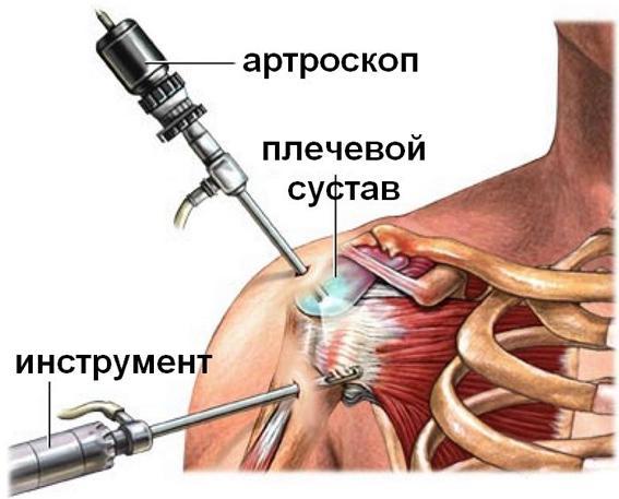 Лечение боли в плечевом суставе - Клиника Здоровье 365 г. Екатеринбург