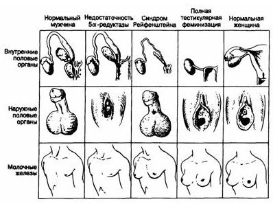 Схематическое изображение внутренних и наружных половых органов, а также молочных желез при различных синдромах...