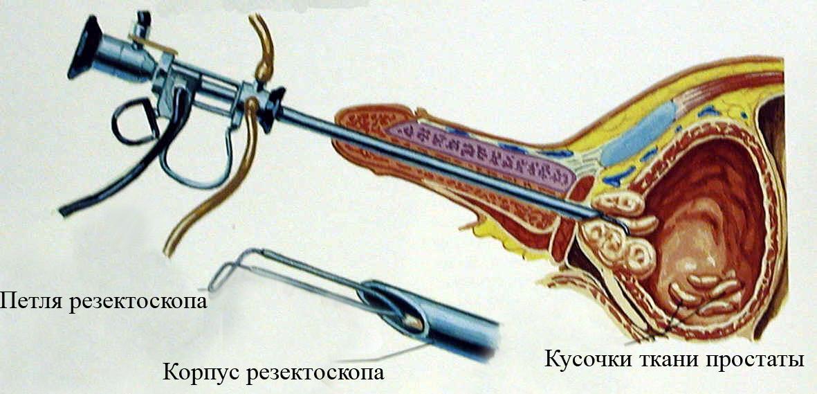Резекция Предстательной Железы Трансуретральная фото
