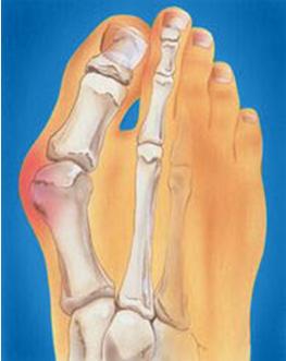 ревматическое воспаление путового сустава