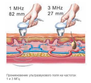 ультразвуковая терапия методы и