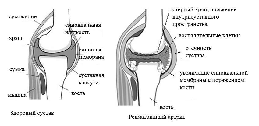 ревматоидный артрит симптомы лечение отзывы